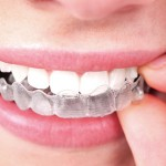 treatment-invisalign