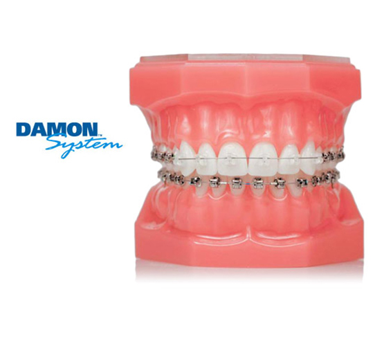 yarbrough orthodontics treaments damon yarbrough orthodontics
