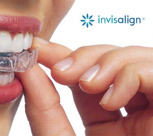 Treaments - Invisalign