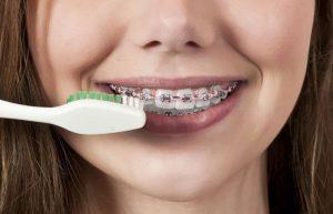 brushing-with-braces